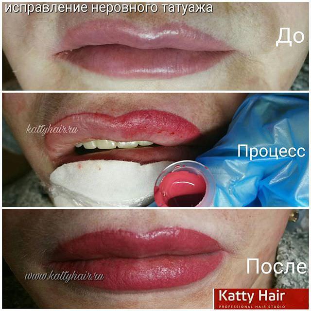 Чем можно заживлять губы
